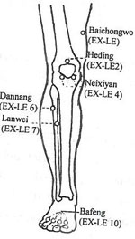 Horse Stifle Joint as well Printable Diagram Of Knee besides Neixiyan additionally  on knee pain location diagnosis