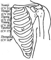 Xiphisternum Pain